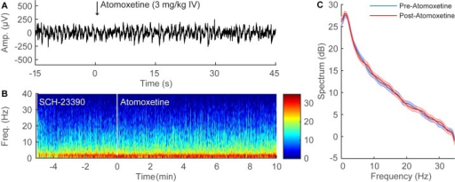 SCH-23390 inhibits the EEG changes induced by atomoxetine during continuous sevoflurane anesthesia.(A) Representative 60-second time-domain EEG recording from an individual rat during continuous sevoflurane anesthesia after pre-treatment with SCH-23390 (0.5 mg/kg IV), with time zero indicating the administration of atomoxetine (3 mg/kg IV). The EEG pattern remains essentially unchanged after atomoxetine administration. (B) Representative time-frequency domain spectrogram computed from 15 minutes of EEG data. After the administration of SCH-23390, atomoxetine does not induce a shift in peak power from δ to θ. (C) Group power spectral density from all rats (n = 3), with shaded areas indicating 95% confidence intervals. After the administration of SCH-23390 during continuous sevoflurane anesthesia (blue), atomoxetine administration (red) did not induce statistically significant changes in EEG power.