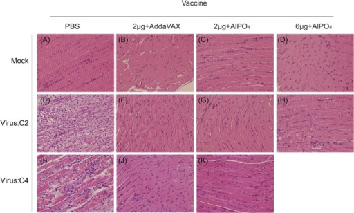 The muscle pathological changes in Tg mice challenged with EV71 viruses.The hematoxylin and eosin (H&E) staining of muscle tissues collected from PBS- or vaccine-treated mice without EV71 challenge (A-D) as control group. H&E staining of muscle tissues collected from PBS- or vaccine-treated mice at 6 days post-infection with the EV71 C2 (E-H) or C4 (I-K) strains. The vaccine formulations and viruses are labeled. All pictures were taken at 200X magnification.
