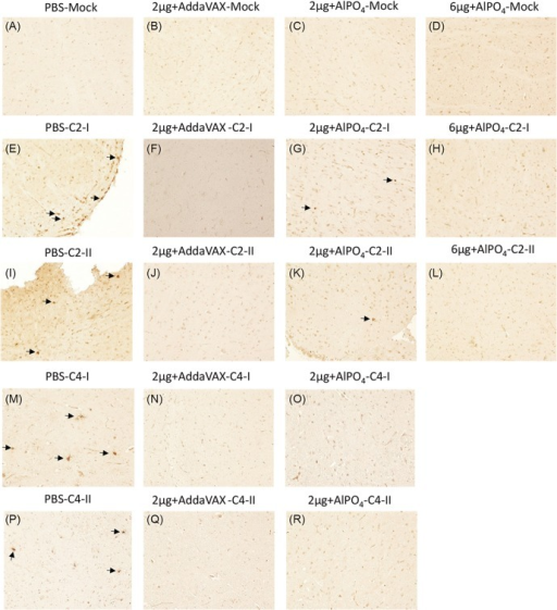 In situ detection of EV71 distribution in the brain stems of Tg mice after challenge.The uninfected Tg mice either pre-treated with PBS or vaccines were used as the negative control, and the images of immunohistochemistry (IHC) staining with the Mab979 antibody are shown in A-D. The PBS- and vaccine-treated Tg mice infected with the EV71 C2 or C4 strains were sacrificed on day 6 post-infection, and the waxed sections of brain stem stained by IHC are representatively shown twice in E-R as labeled. All pictures were taken at 200X magnification. Viral particles in the sections are indicated with arrows.