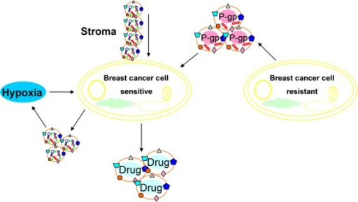 Exosomes lead to transferred from stroma to breast cancer cells contributed to chemotherapy and radiation resistance. Release of exosomes is promoted by hypoxia and exosomes are associated with radiation resistance under hypoxic conditions. Exosomes from drug-resistant breast cancer cells transmit chemoresistance through delivering p-gp and miRNA. Accumulation of anticancer drugs in exosomes/vesicles that shed out of breast cancer cells is a drug efflux mechanism involved in drug resistance.