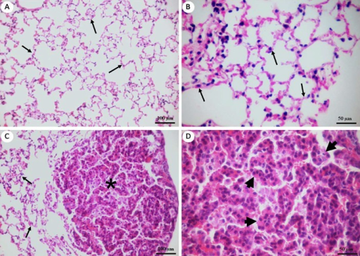 Histopathology of lung tissue. A and B,Preserved alveol | Open-i