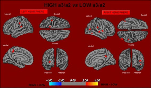 In red are represented the brain regions with higher regional cortical thickness in MCI patients with high a3/a2 ratio as compared to MCI patients with low a3/a2 ratio (p < 0.01 uncorrected). The color-coding for p values is on a logarithmic scale. Results are presented on the pial cortical surface of the brain: dark gray regions represent sulci and light gray regions represent gyri. MCI mild cognitive impairment