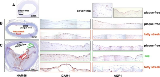 AQP1 immunohistochemistry in vascular tissue specimen showing different stages of atherosclerosis.Overviews, showing immunohistochemistry for macrophages (HAM56, left column), are given for arteries without lesions (A, external iliac artery), with focal lesions of the initial stage (B, abdominal aorta, intimal xanthoma/fatty streak) or the advanced stage (C, common iliac artery, fibro-calcific plaque with signs of rupture). Rectangles within the HAM56 overview indicate the position of areas that are shown as magnification of serial sections stained for ICAM-1 (middle column) and AQP1 (right column). In addition, these sections/areas were further characterized with regard to their cellular composition by staining for macrophages (HAM56) and smooth muscle cells (anti α-actin) (S3–S5 Figs).