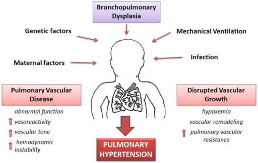 Pathophysiology of pulmonary hypertension (PH) secondary to bronchopulmonary dysplasia (BPD). A combination of antenatal and postnatal factors leads to the development of bronchopulmonary dysplasia (BPD). Disruption of vascular growth is caused by hypoxemia and vascular remodeling with posterior increase of vascular resistance. These changes lead to pulmonary vascular disease with increases vasoreactivity, vascular tone, and pulmonary vascular resistance. Thus, development of PH is a multifactorial consequence of BPD, which results in hemodynamic instability and long-lasting health consequences.