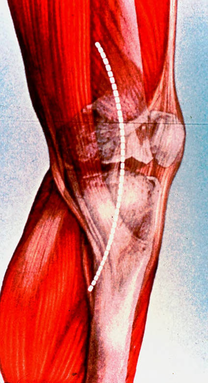 patellofemoral joint; knee