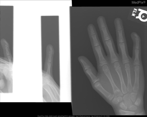 Frontal, lateral and oblique views of the 5th finger demonstrate angulation of the distal phalanx.  There is no evidence of a fracture.