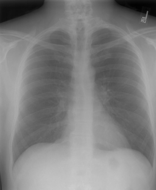 PA and lateral chest x-XXXX dated XXXX at XXXX hours.