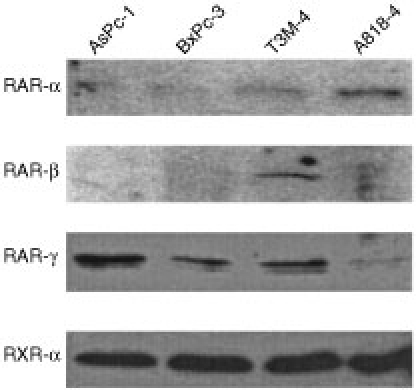 Semi-quantitative Western blots showing expression of RAR-α, -β and -γ and RXR-α in AsPc-1, BxPc-3, T3M-4 and A818-4 pancreatic adenocarcinoma cell lines. Equal amounts of total protein was loaded on the gel, based on the Bradford assay.