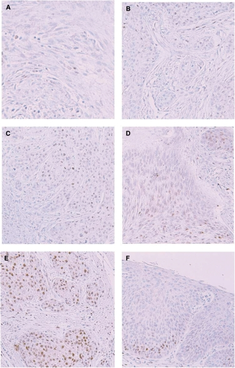 Representative photomicrographs of immunohistochemical staining of HIF1α (× 200). Tumour cell immunoreactivity was scored based on nuclear and cytoplasmic staining. (A) −, no staining (B) 1+, nuclear staining in less than 1% of cells (C) nuclear staining in 1-10% of cells and/or with weak cytoplasmic staining (D) 3+, nuclear staining in 10-50% of cells and/or with distinct cytoplasmic staining, (E) 4+, nuclear staining in more than 50% of cells and/or with strong cytoplasmic staining. (F) HIF-1α-positive cells are already found in carcinoma in situ.