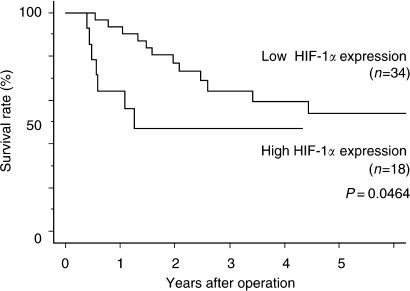 Kaplan–Meier overall survival curves of patients with OSCC underwent adjuvant therapy with or without high HIF-1α expression. P=0.0464 by the log-rank test.