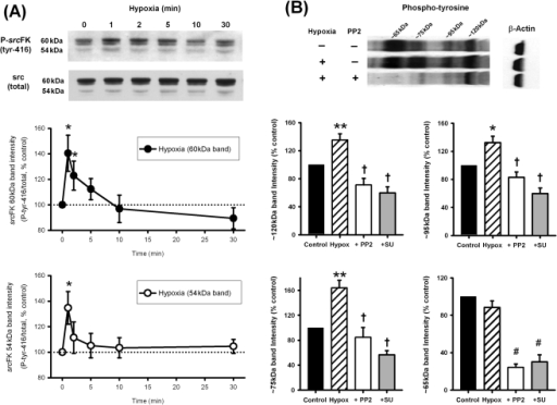 Effects of hypoxia on src-family kinase tyr-416 auto-ph
