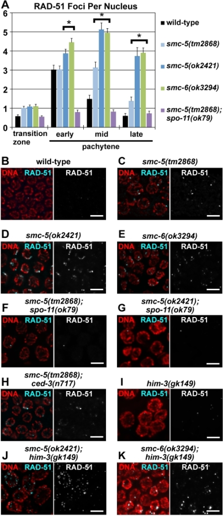 Aberrant RAD-51 accumulation in meiotic germ cells from the smc-5 and smc-6 mutants.(A) The average numbers of RAD-51 foci per nucleus in the transition zone and pachytene regions of the gonad arms are represented in the bar graph; the error bars represent standard errors. The pachytene region was divided into three equal length areas (early, mid and late) and each quantified separately. The smc-5 and smc-6 mutants showed significant increases in RAD-51 foci in comparison to wild-type at the mid- to late-pachytene regions (p≤0.01; two-tailed t-Test). The numerical values and sample sizes are summarized in Table S3. (B–K) Micrographs of RAD-51 immunofluorescence and DAPI-DNA fluorescence in late pachytene nuclei from the wild-type and the mutant germlines. Scale bars = 5 µm.