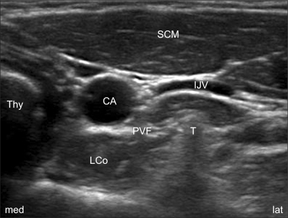 sonoanatomy for an ultrasoundguided sgb the transvers
