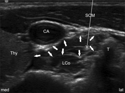 ultrasound image of the c6 transverse shortaxis view f