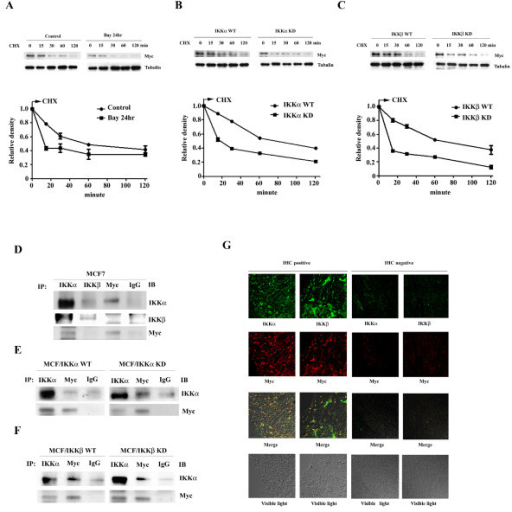 IKKα and IKKβ increase Myc protein stability. The stability of Myc protein was analyzed by Western blot analysis of the whole cell lysates prepared from (A) MCF7 with or without a 12 hours, 10 μM Bay11-0782 treatment (B) wild-type and kinase-dead IKKα transfected cells (C) wild-type and kinase-dead IKKβ transfected cells along a time course after adding cycloheximide. The stain of tubulin was used as loading control. The reading of Myc density was normalized to the reading of tubulin density. Each data represents mean ± SD calculated from two independent experiments. Whole cell lysates were prepared from (D) MCF7 cells, (E) wild-type and kinase-dead IKKα transfected cells, and (F) wild-type and kinase-dead IKKβ transfected cells were subjected to coimmuoprecipitation using indicated antibodies. The precipitated complex was further Western blot analyzed the corresponding proteins shown in the figure. (G) Confocal microscopy observation. Breast cancer tissues which were previously identified positive or negative for IKKα, IKKβ and Myc expressions by IHC staining were used. The slides were dual stained with rabbit anti-IKKα/mouse anti-Myc antibodies coupled with FITC-conjugated goat anti-rabbit IgG/Rodamine-conjugated donkey anti-mouse IgG antibodies or goat anti-IKKβ/mouse anti-Myc antibodies coupled with FITC-conjugated donkey anti-goat IgG/Rodamine-conjugated donkey anti-mouse IgG antibodies, respectively.