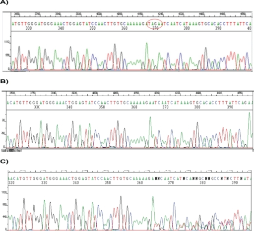 DNA sequencing for a section of factor H SCR20 in family A.Notes: A) Wild type chromatogram, B) Chromatogram of I–4 patient: After the nucleotides AAAAAGA, there is a deletion of 4 nucleotides TAGA (3767_3771delTAGA), C) Chromatogram of a heterozygous patient with superposed peaks from the wild-type and mutant alleles.
