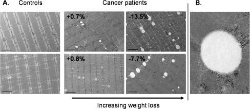 Representative electron micrographs for controls and cancer patients. a. Images are all at ×2,650 magnification. Greater numbers of lipid droplets (white vacuoles) were evident with increasing weight loss. Percent (%) values for cancer patients refer to weight change from pre-illness stable weight. Bars represent 2 μm. b. ×11,000 magnification image of a lipid droplet demonstrating the absence of double membranes, thus distinguishing it from vacuolated giant mitochondria [36]