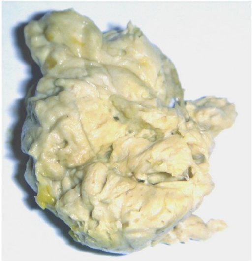 Acholic Discolored Stool Of A Baby With Biliary Atresi