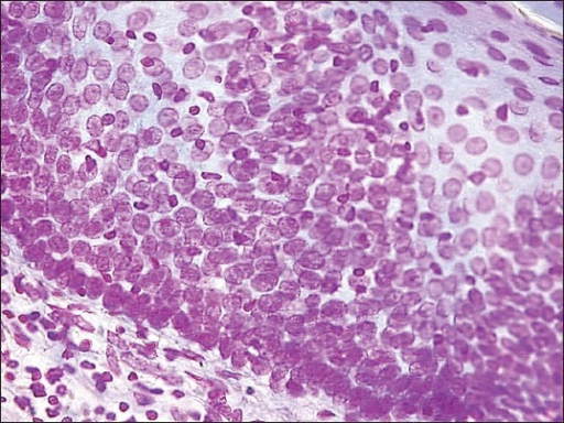 Photomicrograph showing Feulgen stained nuclei of severely dysplastic oral mucosa (Feulgen stain, ×200)