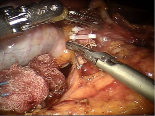 After the gastroduodenal artery is identified, it is sectioned between the Hem-o-lok using the robotic Ultracision™.