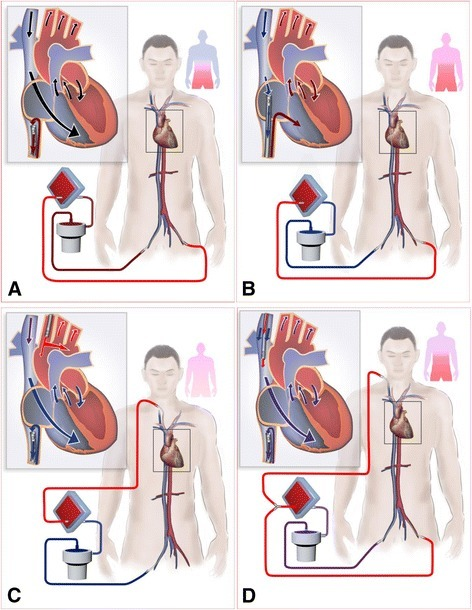 Paradigm depicting the mechanism of differential oxygen return. (A) Differential venous oxygen return between the IVC and the SVC exists in IVC-FA. Oxygen-rich blood is drained back to the ECMO circuit by the drainage cannula at the IVC, and the oxygen-poor blood from the SVC enters the heart and perfuses the upper body, which leads to differential hypoxia. (B) In SVC-FA, oxygen-poor blood in the SVC is drained to the ECMO circuit, whereas the oxygen-rich blood from the IVC enters the RA. (C) In IVC-CA, the oxygenated blood from the ECMO circuit is directly supplied to the whole body. (D) In FA-IJV, a certain amount of oxygenated blood is shunted into the SVC to improve upper body oxygenation. Differential venous oxygen return is attenuated in B, C, D. ECMO: extracorporeal membrane oxygenation; FA-IJV: an additional return cannula was added into the internal jugular vein on the basis of femoral veno-arterial extracorporeal membrane oxygenation; IVC-CA: a drainage cannula was inserted into the inferior vena cava and a return cannula was inserted into the carotid artery; IVC-FA: a drainage cannula was placed into the inferior vena cava through the femoral vein and a return cannula was inserted into the femoral artery; RA: right atrium; SO2: oxygen saturation; SVC-FA: a drainage cannula was placed into the superior vena cava through the femoral vein and a return cannula was placed into the femoral artery.