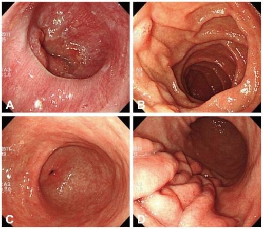 (A-D) Follow-up endoscopy image showing continued improvement of the mucosal edema and nodularity in the duodenum.