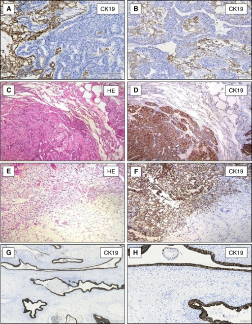 CK19-expression in mixed germ cell tumours of the testis and metastases. YST showing a strong expression of CK19 and embryonic carcinoma component in the same tumour does not express CK19 protein (A and B, x100). Omentum majus with metastasis of an YST (C, HE staining x40) expressing CK19 protein (D, x40). Pulmonary metastases of an YST of the testis (E, HE staining x40) express CK19 (F, x40). Intestinal mucosa in teratomas (G, x40+ H, x100) shows positive CK19-expression.