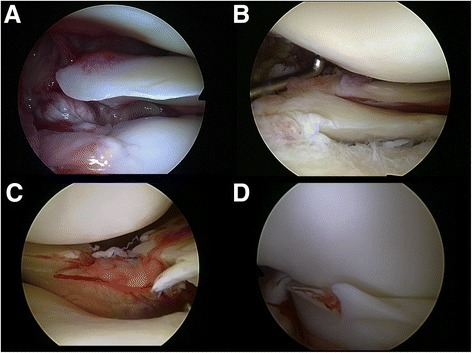 Lateral meniscus tears defined as major tears. Root tears (defined as avulsion of the meniscus root (A) or complete radial/oblique radial tears within one centimeter from the bony insertion of the lateral meniscus (B)); radial split tears (C) and unstable longitudinal tears including bucket-handle tears (D).