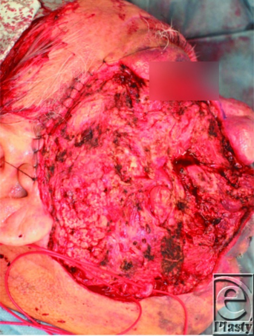Resection of the port-wine stain. The facial artery and vein were exposed for microvascular reconstruction.