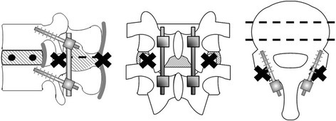 Pedicle screw fixation model