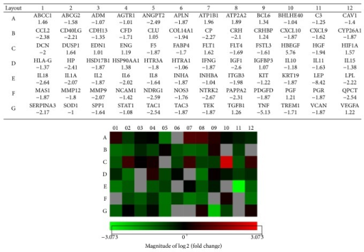 Heat map representation for the differential expression of genes associated with PE after 4 h exposure to H2O2 in villous 3A trophoblasts. Gene expression is represented in the heat map in the color scale of −3.073–3.073 in green-red color scheme (n = 2). Genes evaluated and their locations on the heat map are depicted in the associated table above the heat map.
