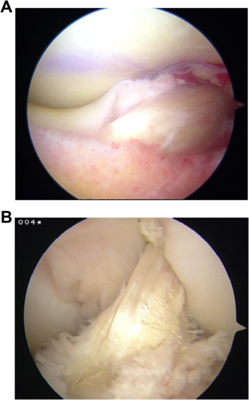 Images taken during (A) initial surgery and (B) second-look arthroscopy 6 months later on a patient who underwent anteromedial anterior cruciate ligament reconstruction with suspensory femoral soft tissue fixation. Significant fraying of the anterolateral fibers of the graft was noted at second surgery.