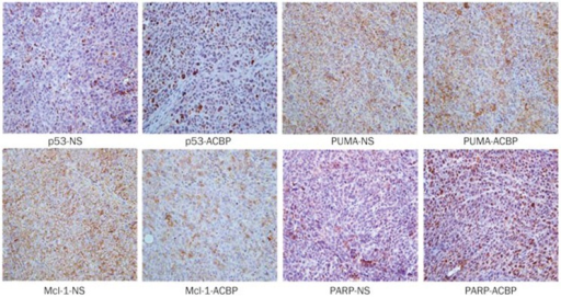 IHC analysis of p53, PUMA, Mcl-1, and PARP expression in xenograft mouse tumor tissues. Brown represents positive signals (400×).