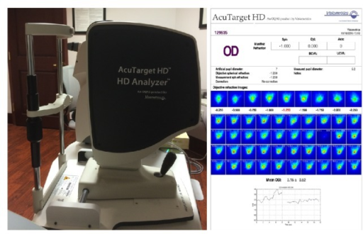 The AcuTarget HD and representation of objective scatter index and tear film analysis.
