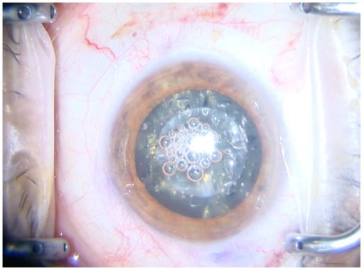 Surgeon view of eye after femtosecond laser capsulotomy lens softening and limbal relaxing incision with the Catalys laser.
