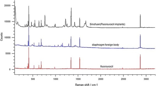 Raman spectra of fluorouracil, the diaphragmatic foreign body and Sinofuan