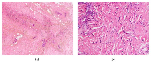 Histological analysis of the left breast. The initial diagnosis was scirrhous carcinoma, because the tumor cells were associated with a dense connective tissue in the stroma. The diagnosis was later revised to invasive lobular carcinoma.