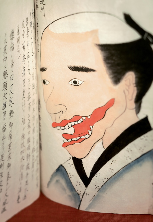 <p>Image of an open illustrated manuscript showing the drawing of a man's face with a red tumor by his mouth to be excised with general anesthesia.  Bunsen kiroku, p. 67.</p>