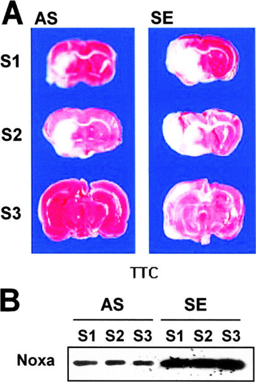 Protection of brain from ischemia by suppression of Noxa expression. SE or AS oligonucleotides (2 μg in 1 μl) were injected into the lateral ventricle 4 h before MCA occlusion for 2 h. Brain was reperfused for 14 h, removed, and then cut into eight coronal slices. (A) Representative section stained with triphenyl tetrazolium chloride (TTC). (B) Western blot analysis of Noxa from the corresponding slices of rat brain. (C) Infarction volume was calculated after measuring the infarct areas on coronal brain sections as described in Materials and Methods. The infarction volume of the control animal (SE) was 154.24 ± 28.38 mm3, whereas that of the experimental group (AS) was reduced to 48.86 ± 13.46 mm3 (*, P < 0.05).