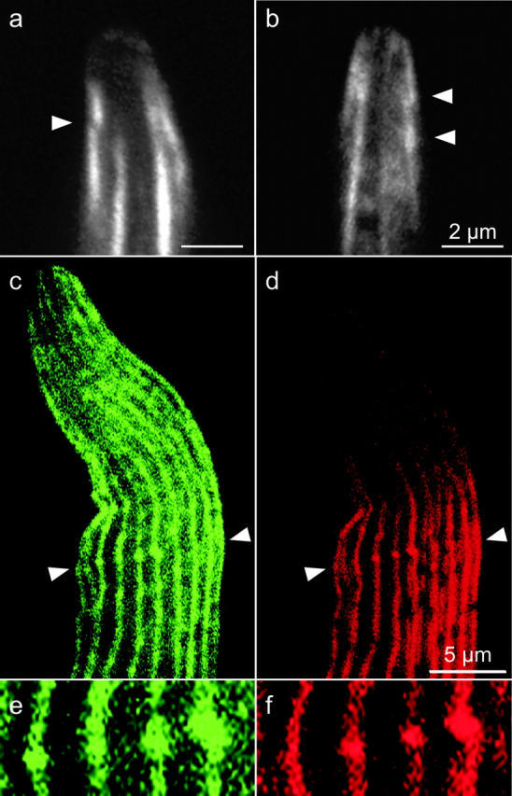 "Actin modules overlap during grafting. (a and b) Confocal images of growing bristle tips from 44-h wild-type macrochaetes stained with rhodamine phalloidin showing overlapping modules (arrowheads). (c–f) Confocal micrographs of a wild-type 36-h pupal bristle stained with antiforked antibody (green) and phalloidin (red). A macrochaete showing thin actin bundles (d) containing the forked cross-bridge (c). Periodic ""knuckles"" representing module overlap can be seen along the bundles using the antiforked antibody. Many of these knuckles are in transverse register (e.g., arrowheads). (e and f) A higher magnification view of four actin-forked knuckles shown in c and d between the arrowheads. As expected, sprouting bristles that lack forked protein (forked36a mutant) were not stained with the forked antibody but were stained with phalloidin (not depicted). Bars: (a and b) 2 μm; (c and d) 5 μm."
