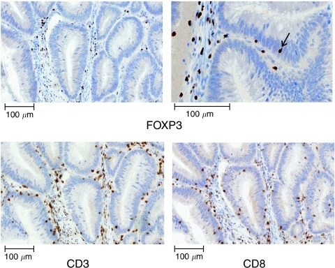 Representative immunohistochemical stainings with antibodies specific for FOXP3 (upper panel), CD3 (lower left panel) and CD8 (lower right panel). Detailed view of FOXP3 staining (upper right) shows the presence of FOXP3-positive cells infiltrating the tumour epithelium (arrow).