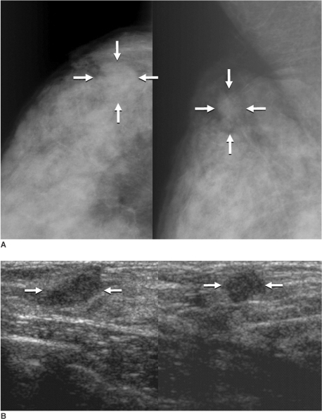 A 41-year-old woman with pure tubular carcinoma (95% tubular component) with painful palpable lump in the upper outer quadrant of the right breast.A. Mammography shows an about 1.5-cm sized oval shaped isodense mass with an obscured margin (arrows) in the upper outer quadrant of the right breast.B. Sonography shows an about 1.2-cm sized oval shaped hypoechoic mass with a microlobulated margin (arrows) in the right breast.