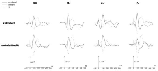 Grand average of individual late-AEP responses relative to each stimulus over the temporal lobes ipsilateral and contralateral to the stimulation (corresponding grand average at Cz is shown as a dotted line: the waveform is reversed compared with that at the temporal lobes and serves the as reference).