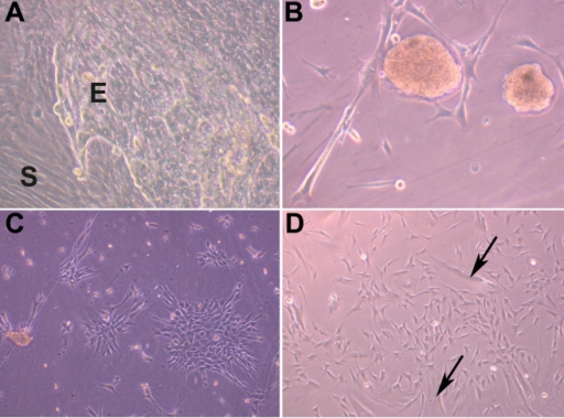 Morphological features of mesenchymal cells of limbus. Limbal explant cultures having epithelial (E) and mesenchymal cells (S; 200×; A). Cell sphere formation in the MC-L cultures giving impression of embryoid body formation (200×; B). Spindle shaped morphology of MC-L forming colonies (200×; C). Culture of MC-L showing both spindle shaped and broad flattened cells (arrows; 200×; D)