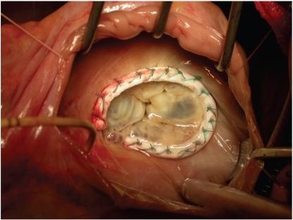 Mitral Ring Surgery