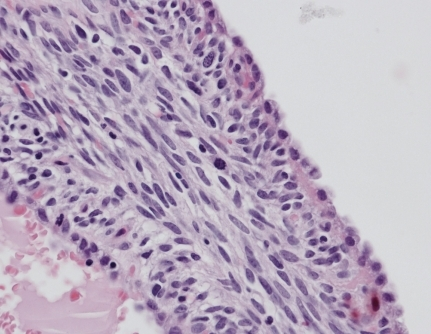 The cyst is lined by a single row of benign-looking cuboidal epithelial cells, whereas the wall is composed of a thin rim of bland spindle-to-oval cells. In the center of the field, a mitotic figure is present. (Hematoxylin and eosin stain; magnification 400×).