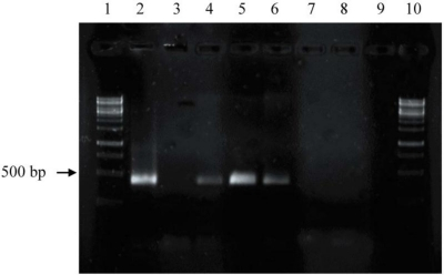 PhzE gene fragment amplification of selected strains. Lane 1 and 10: 1 kb DNA-ladder; 2: positive control Pseudomonas chlororaphis subsp. chlororaphis DSM 50083T; 3: negative control (without template DNA); 4, 5, and 6: isolates H253, HB117, and LB129, respectively, exhibiting phzE fragments; 7, 8, and 9: isolates HB290, HB147, and LB164, respectively, exhibiting nor phzE fragments.