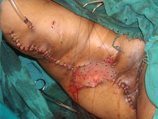 Postoperative picture after resection of the lesion and split skin thickness graft in place