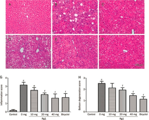 Effects of Rg1 on liver histology following CCl4 treatment. Rats were subcutaneously injected with CCl4 (0.2 mL/kg BW, twice per week) for 8 weeks, and Rg1 and bicyclol were administered at the last two weeks (once a day). Representative photomicrographs of liver histology (H & E, magnification: ×40) from each group are shown as follows: Control (A), CCl4 alone (B), CCl4+Bicyclol (C), CCl4+Rg1-10 mg/kg (D), CCl4+Rg1-20 mg/kg (E) and CCl4+Rg1-40 mg/kg (F). Scale bar, 100 μm. The inflammatory score (G) and balloon degeneration score (H) were evaluated in ten randomly selected fields from each slide at a magnification of ×200. All data were expressed as mean±SD of six animals. cP<0.01 vs control. fP<0.01 vs CCl4 alone.