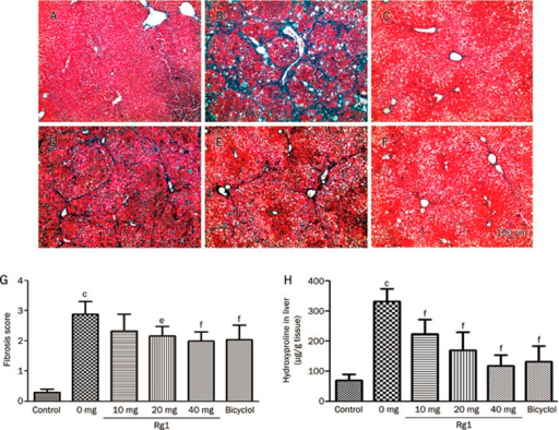 Effects of Rg1 on CCl4-induced hepatic fibrogenesis. Hepatic fibrosis was detected by Masson's trichromic staining. Representative photomicrographs of liver histology from each group are shown as follows: Control (A), CCl4 alone (B), CCl4+Bicyclol (C), CCl4+Rg1-10 mg/kg (D), CCl4+Rg1-20 mg/kg (E) and CCl4+Rg1-40 mg/kg (F). Original magnification: ×40. Scale bar, 100 μm. The fibrosis score (G) was evaluated in ten randomly selected fields from each slide at a magnification of ×200. (H) The content of hydroxyproline in liver tissues. All data were expressed as means±SD of six animals. cP<0.01 vs control. fP<0.01 vs CCl4 alone.